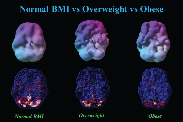 otyłość a mózg